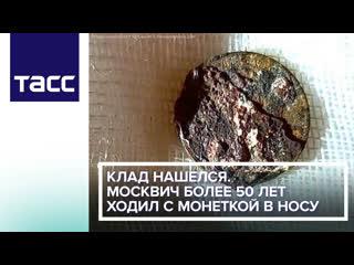 Клад нашелся. Москвич более 50 лет ходил с монеткой в носу