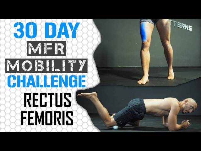Rectus Femoris Release Re tensioning An Anterior Pelvic Tilt