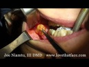 10 Minute Buccal Fat Reduction by Dr. Joe Niamtu, III