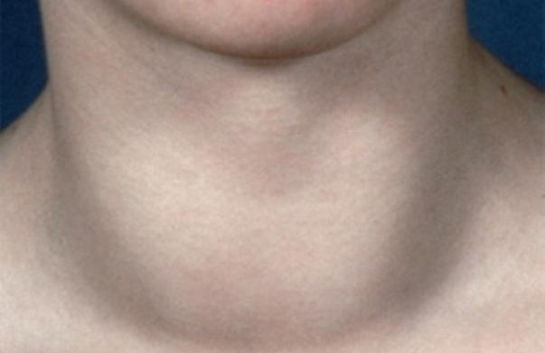 Филлеры и биоревитализация при обострениях болезней щитовидной железы, изображение №2