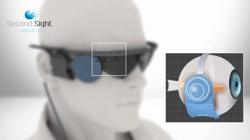 Second Sight Argus II Retinal Prosthesis System English
