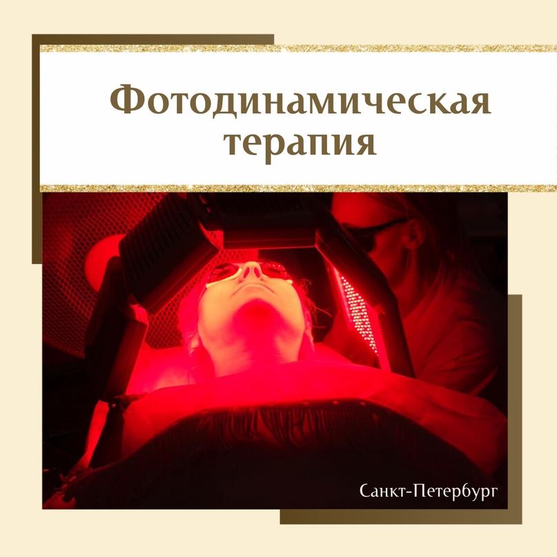 Фотодинамическая терапия (ФДТ), изображение №1