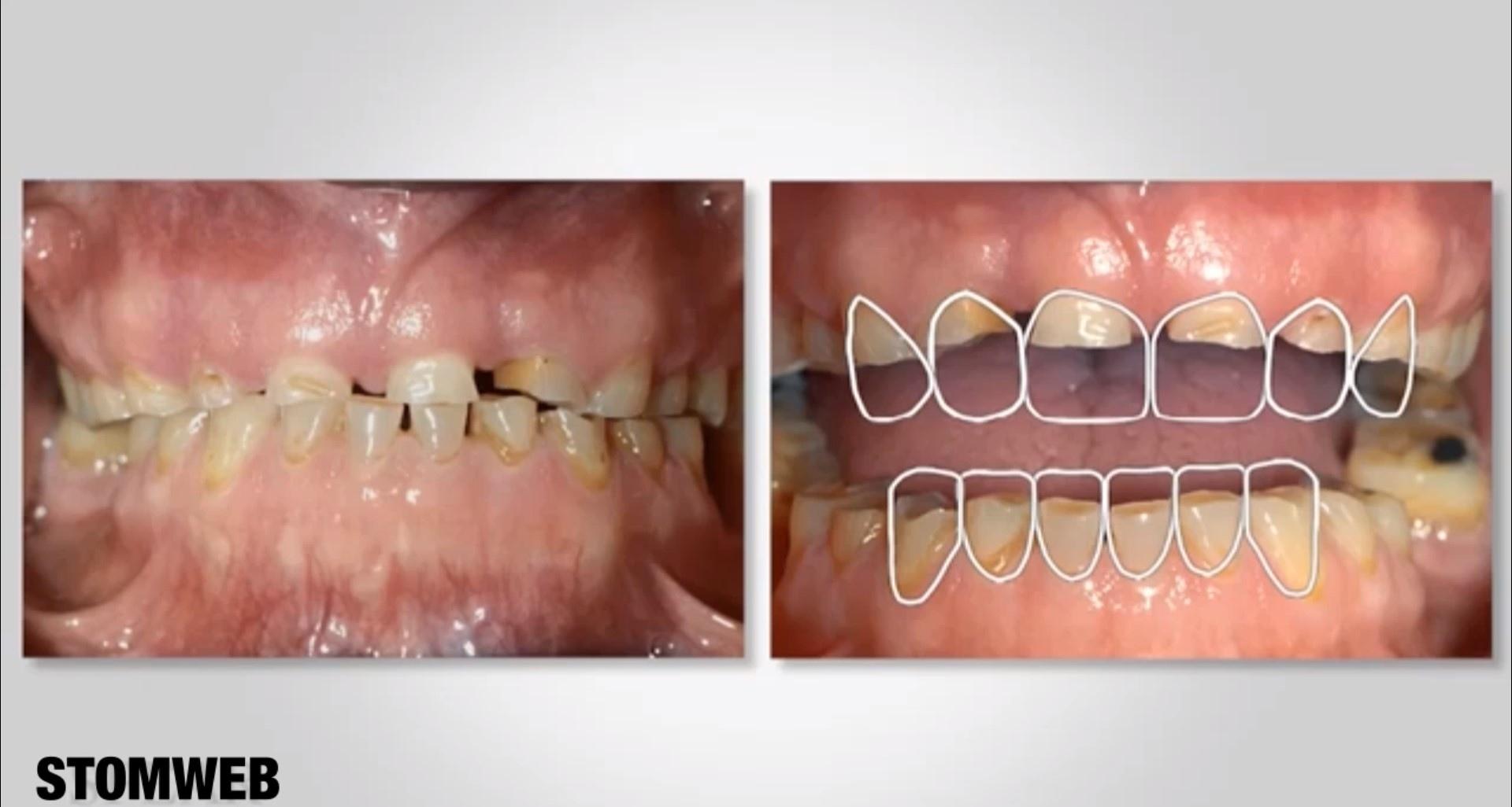Этиология стираемости зубов