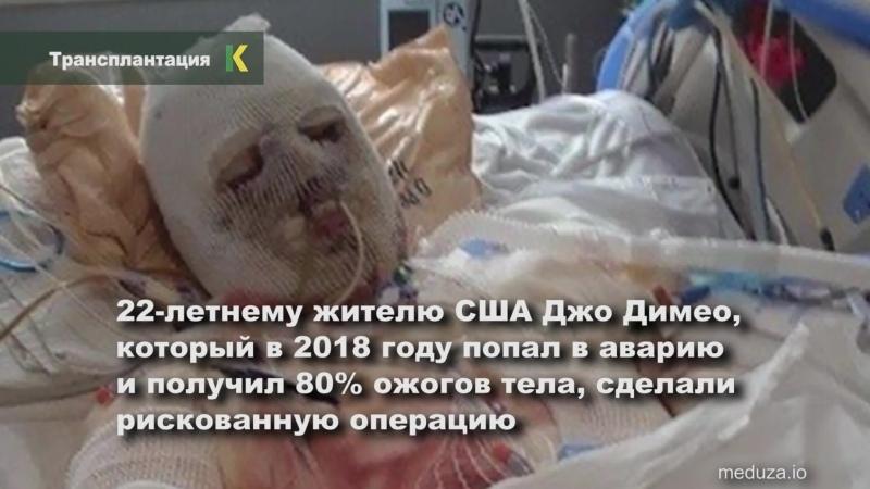 Операцию сделали молодому американцу который получил ожоги 80% тела в результате аварии