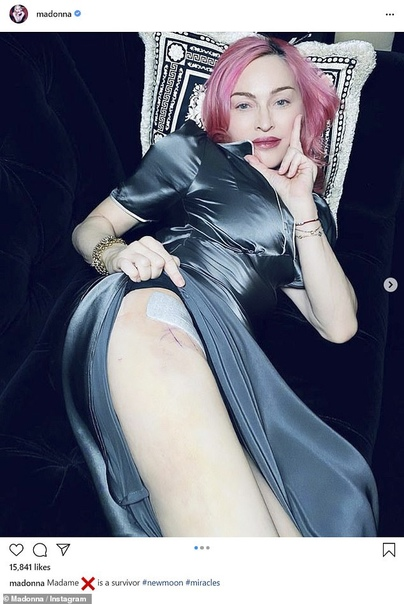 В ее коже: 62-летняя Мадонна в нижнем белье показала шрам на бедре и следы от банок